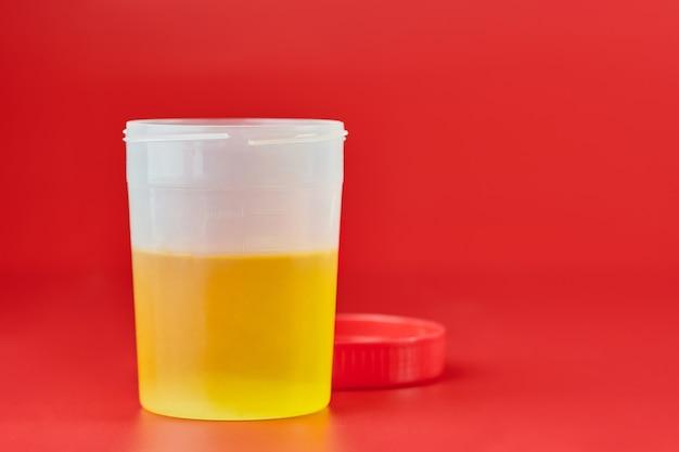 Exame de urina para urolitíase em recipiente