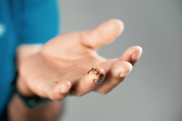 Feche a mão do homem com a ferida suturada no dedo. ferido, helth e conceito médico.