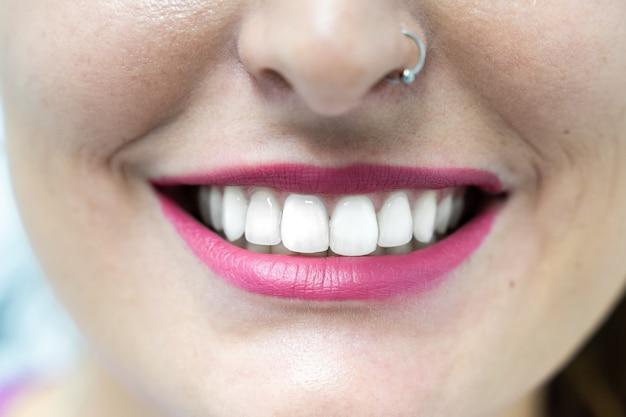 Feche acima da boca da mulher com dentes brancos.