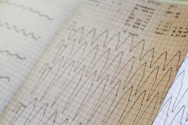 Feche acima da ideia de um papel do eletrocardiograma.