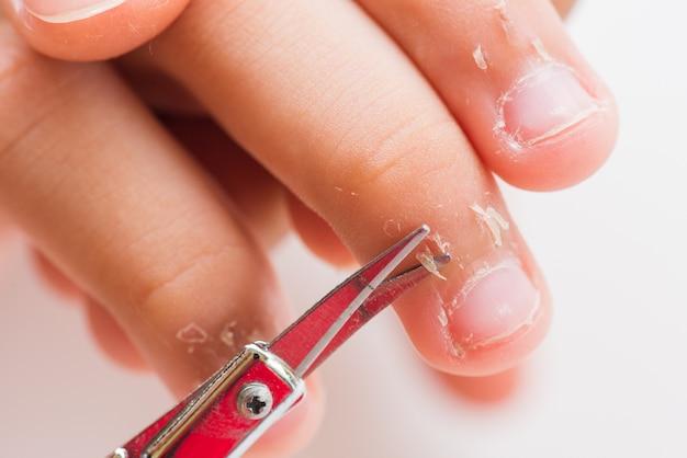 Feche acima da mãe que usa a tesoura corte a pele seca nos dedos da criança.