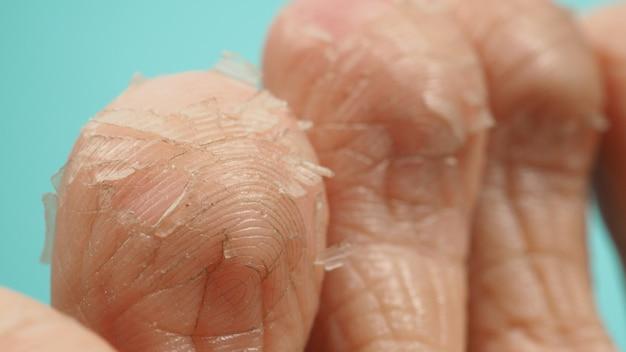 Feche acima do peeling do pé ou remova a pele morta em um fundo verde ou azul tiffany.