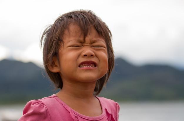 Feche acima dos dentes de bebê com cáries, dente deteriorado