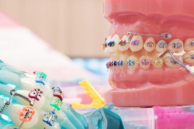 Feche as ferramentas do dentista e o modelo ortodôntico.