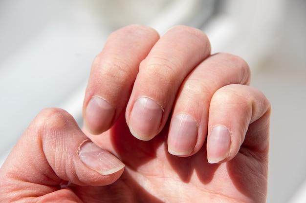 Feche as unhas da mulher após uma manicure pobre. cutícula unha crescida demais e placa ungueal danificada. conceito de saúde e cuidados.