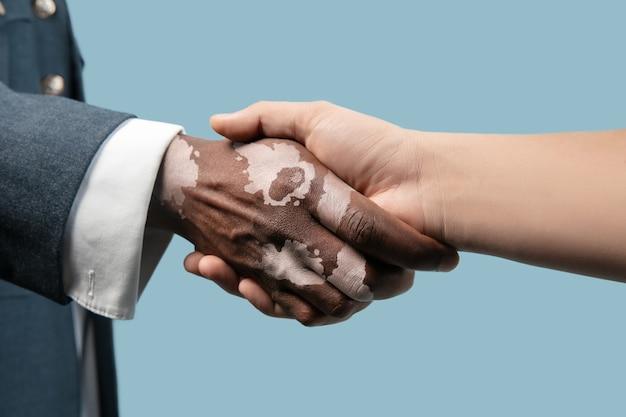 Feche de mãos masculinas com pigmentos de vitiligo isolados no fundo azul do estúdio