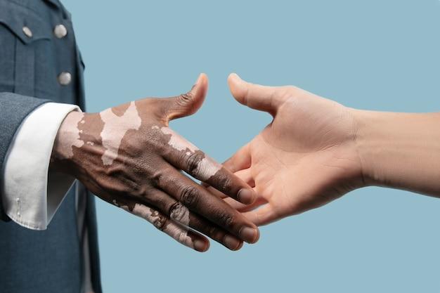 Feche de mãos masculinas com pigmentos de vitiligo isolados sobre fundo azul.