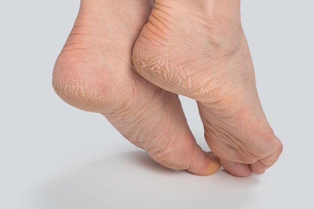 Feche de rachaduras nos calcanhares com pele ruim coberta. cuidados de saúde e conceito médico.