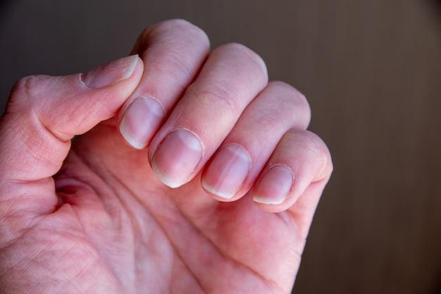 Feche de unhas femininas após uma manicure ruim em um fundo marrom. cutícula unha crescida demais e placa ungueal danificada