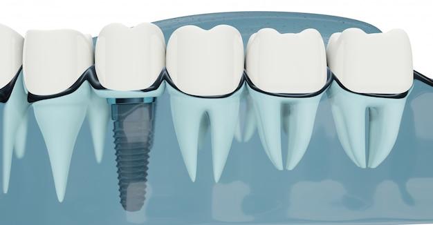 Feche o componente de implantes dentários. cor azul transparente. ilustrações 3d