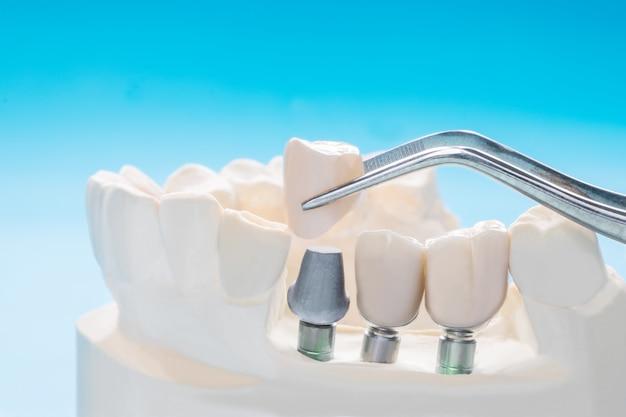 Feche o implante da ponte de fixação do suporte do dente implan e a coroa.