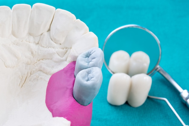 Feche o implante e a coroa da ponte do reparo do suporte do dente do modelo de implan.