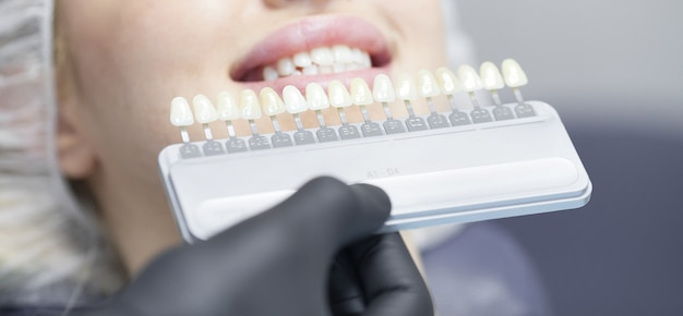 Feche o retrato de mulheres jovens na cadeira do dentista, verifique e selecione a cor dos dentes. dentista faz o processo de tratamento no consultório da clínica odontológica.