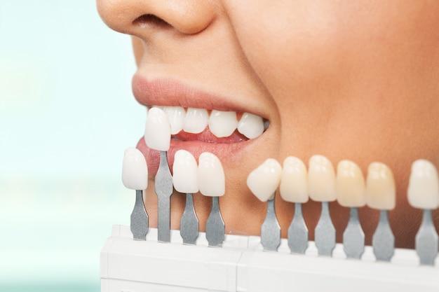 Feche o retrato de uma jovem mulher, verificando e selecionando a cor dos dentes.