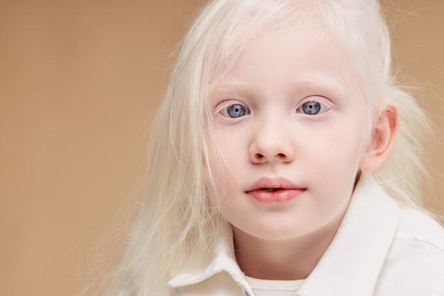 Feche o retrato de uma menina caucasiana com síndrome de albinismo