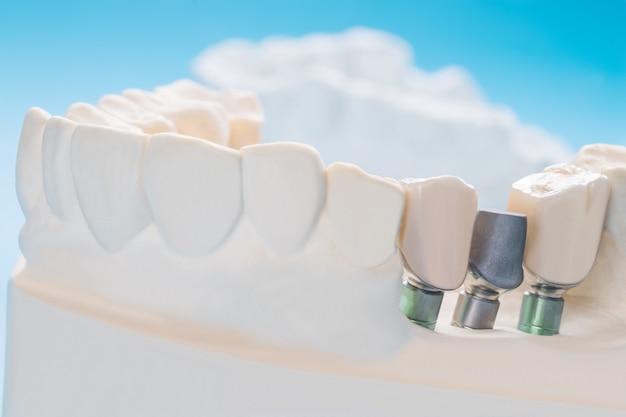 Feche o suporte do dente do modelo de implante, fixe o implante e a ponte da ponte.