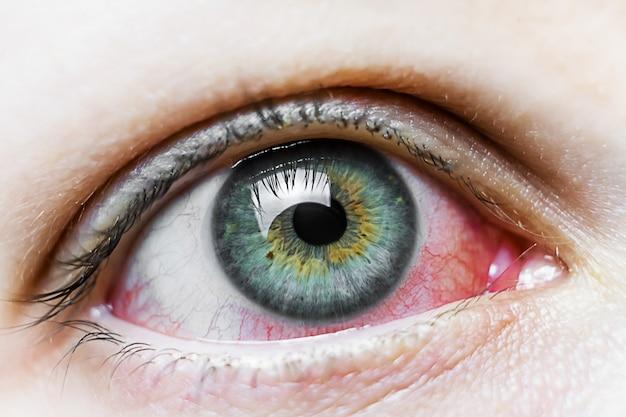 Feche-se de um olho vermelho injetado de sangue severo. blefarite viral, conjuntivite, adenovírus. olho irritado ou infectado.