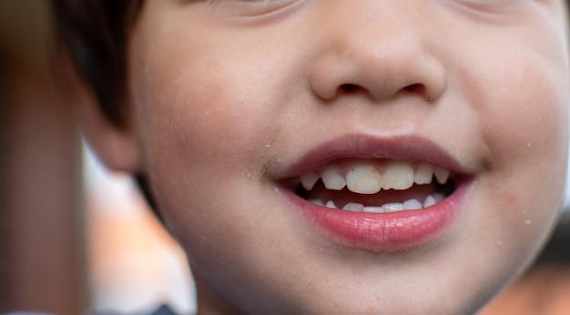 Fechou a imagem da boca do menino com um sorriso. pode ver o dente com a cor amarela.