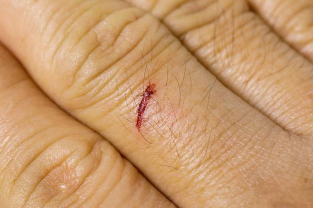 Ferida fresca no dedo médio