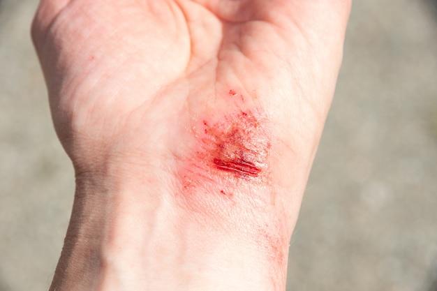 Ferimento com sangue na palma da mão, braço, pulso após um acidente ou queda. lesão esportiva - acidente doloroso com ferimento na mão.