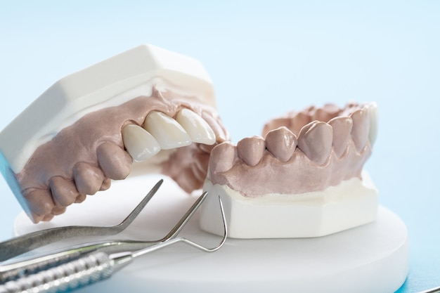 Ferramenta dentária e odontológica - modelo de dentes de demonstração de variância de dentes porstodônticos