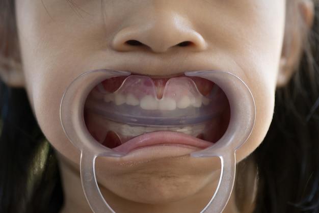Ferramenta ortodôntica da linha ef para dentes infantis com afastador de bochecha