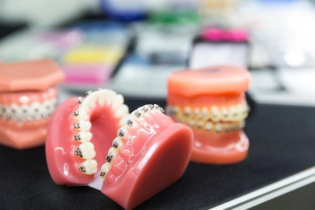 Ferramentas dentais ou ortodônticas, closeup de dentadura. gabinete de dentista, estomatologia. cuidados com os dentes, higiene da boca