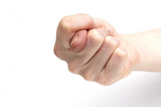 Figo de gesto de mão isolado no branco