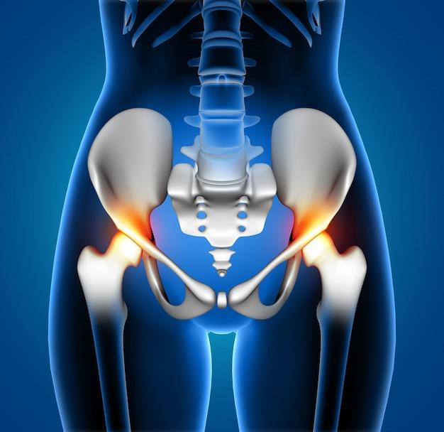 Figura médica feminina 3d com espinha destacada em dor