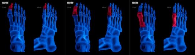 Filme de raio-x azul do osso do pé do dedão do pé com destaques vermelhos na dor diferente e na área comum