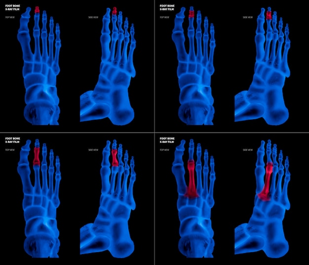 Filme de raio-x azul do osso do pé do dedo do pé longo com destaques vermelhos na dor diferente e na área comum