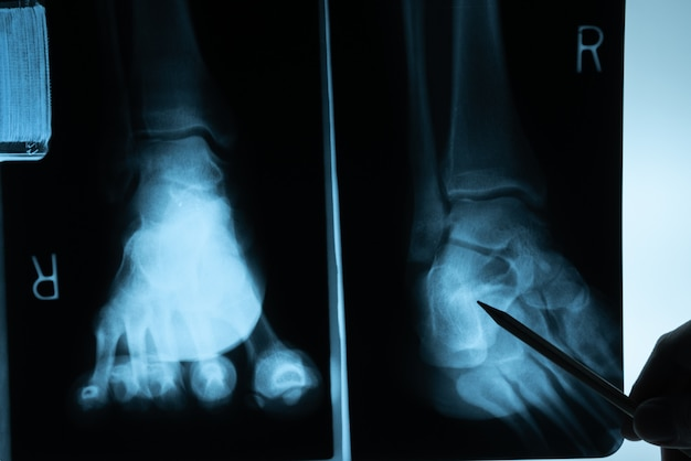 Filme de raio x com a mão do doutor para examinar