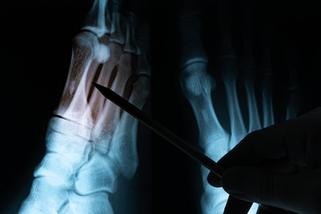 Filme de raio-x com a mão do médico