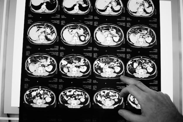 Filme de raio x de tomografia computadorizada de cérebros