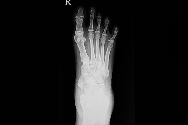 Filme de raio x de um pé do paciente