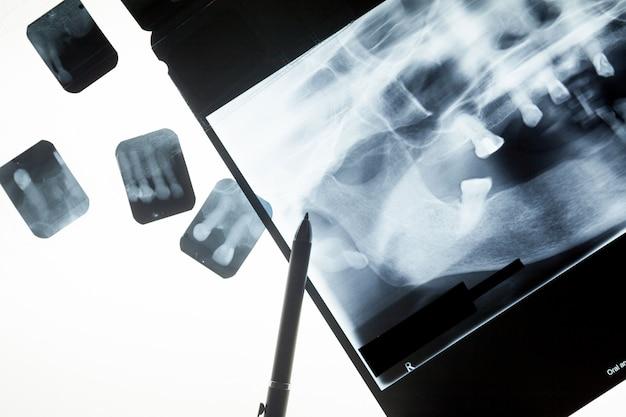 Filme de raio x dental para o conceito de atendimento odontológico