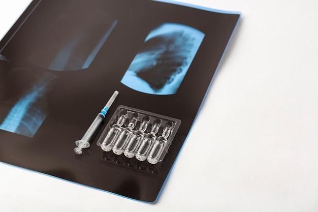 Filme de raio-x dos pulmões e seringa com frascos de vacina. sintoma de tratamento coronavírus, covid-19, conceito de pneumonia e bronquite. vacinação. vacinação contra doenças infecciosas.