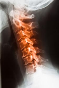 Filme de raio-x para crânio humano