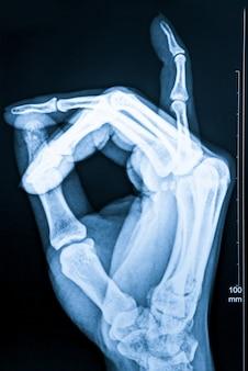 Fluoroscopia de raios x de dedos humanos