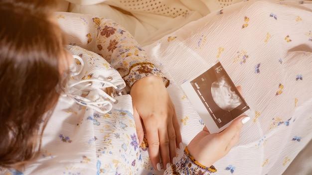 Foto acima de uma mulher grávida segurando uma tomografia fetal sentada na cama, luz do sol