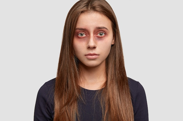 Foto da cabeça de uma mulher morena atraente com hematomas ao redor dos olhos, olhares com uma expressão infeliz diretamente para a câmera