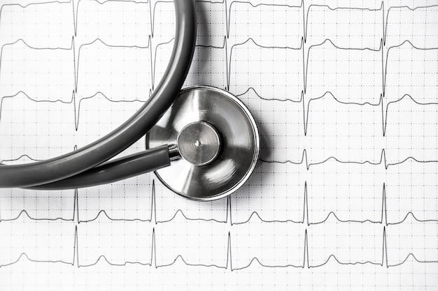 Foto de um ecg de eletrocardiograma ou impressão de ekg com estetoscópio. conceito de saúde médica. auscultação, ouvindo o coração com um estetoscópio