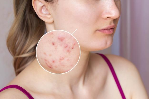 Foto recortada do rosto de uma jovem com pele de acne no círculo de zoom borbulhas com cicatrizes vermelhas nas bochechas