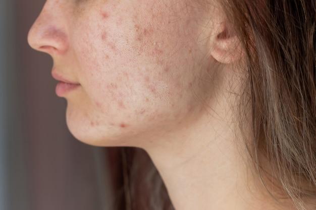Foto recortada do rosto de uma jovem de perfil com problema de acne pimples cicatrizes vermelhas nas bochechas