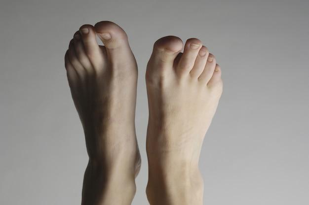 Fotografia de estúdio dos pés de uma mulher