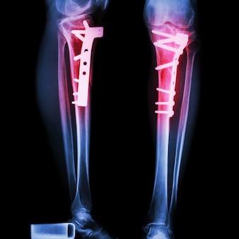 Fratura da tíbia (osso da perna). foi operado e fixado internamente por