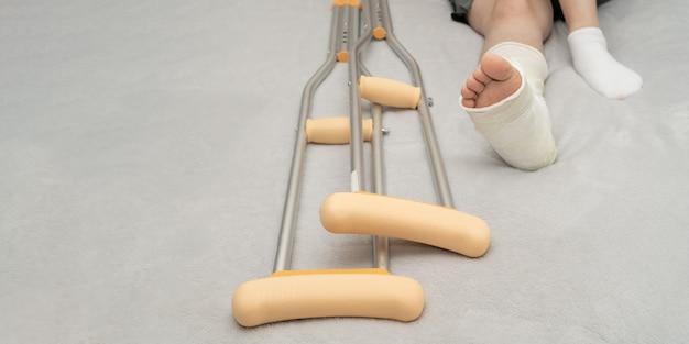 Fratura dos ossos do tornozelo em paciente do sexo feminino com gesso e muletas