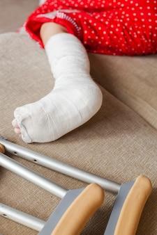 Fratura dos ossos do tornozelo em uma paciente adolescente com gesso e muletas. reabilitação cirúrgica e recuperação ortopédica, deitado no sofá, ficando em casa