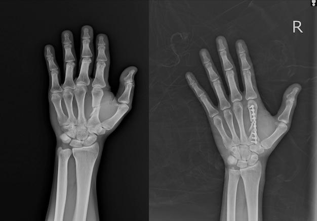 Fratura meio eixo rt.2nd. osso metacapal e osso pós-metacarpo com placa.