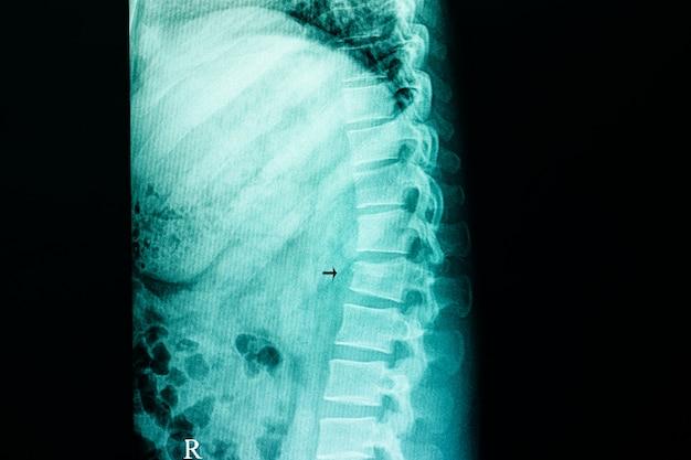 Fratura por compressão da coluna lombar